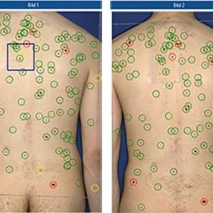 Hautkrebs-Erkennung